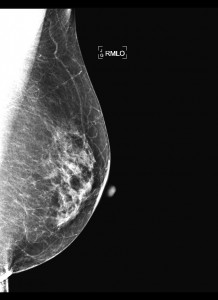 Mammogram, X-ray of the Breast